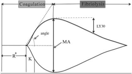 management of trauma induced coagulopathy with